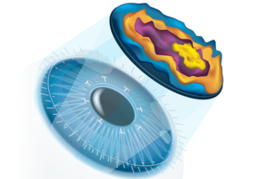 lasik surgery in delhi, cost of laser eye centre
