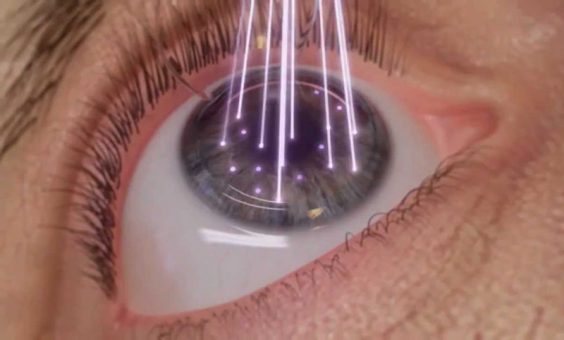 Benefits of Lasik surgery