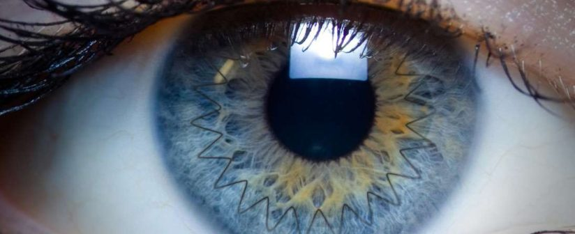 Cornea Transplant Surgery – Overview, Steps & Recovery