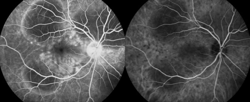 Fluorescein Angiography and Its Advantages