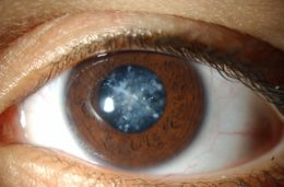 Can Cataracts cause Blindness