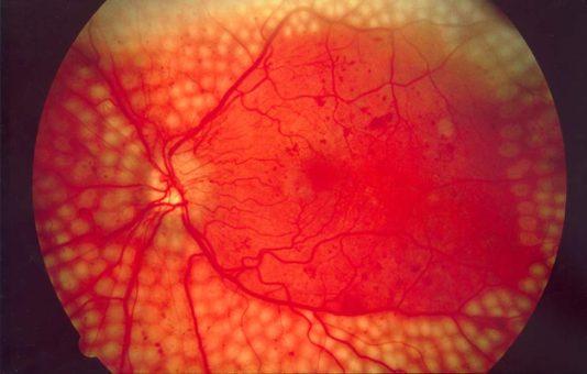 diabetic retinopathy surgery in delhi India