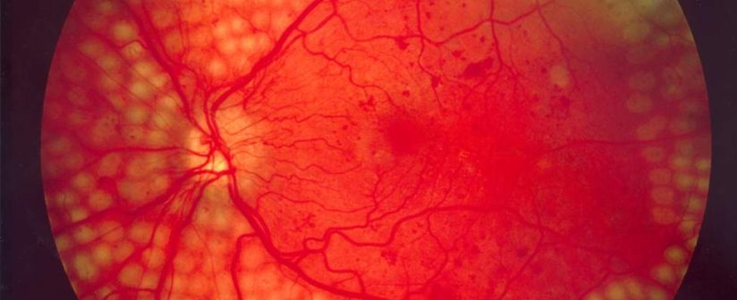 Diabetic Retinopathy Symptoms, Causes and Treatment