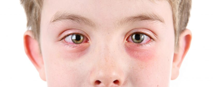 Allergic Conjunctivitis on the Rise in Kids, Adults