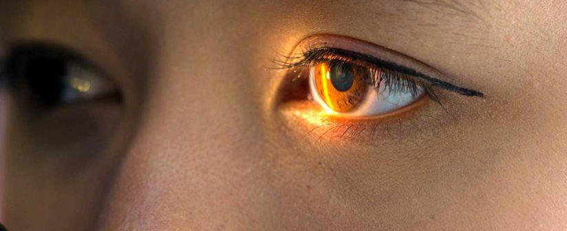 DSAEK surgery by Dr. Ikeda Lal at Delhi Eye Centre for Pseudophakic Bullous Keratopathy
