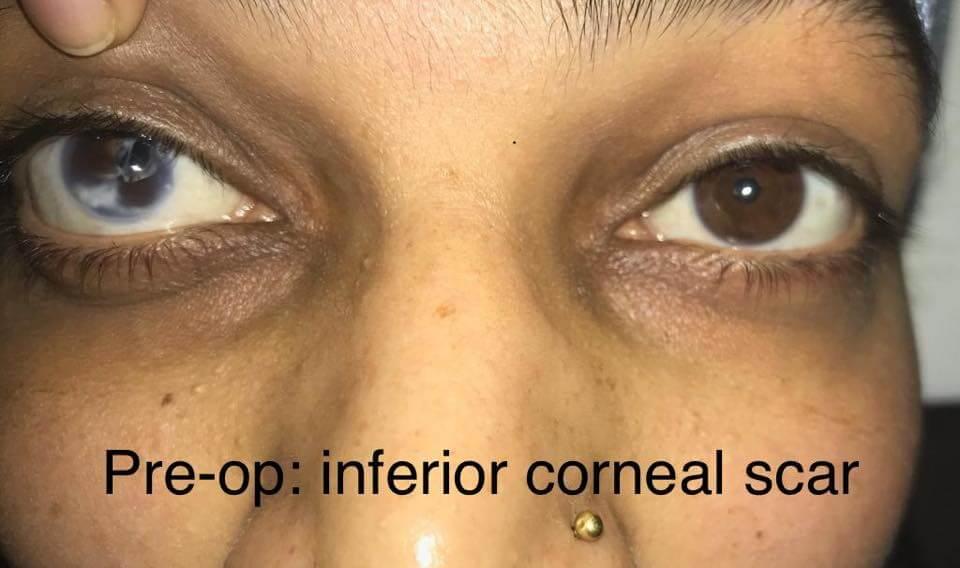 inferior corneal scar